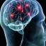 Նյարդային բջիջները վերականգնվում են