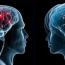 Տղամարդու և կնոջ ուղեղ