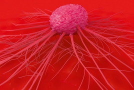 Scientists find a way to block breast cancer spread