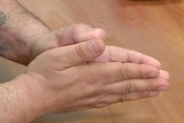 Armenian man cuts off thumb in U.S., has it replaced with a big toe