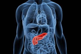 Teen obesity linked with increased risk of pancreatic cancer: research