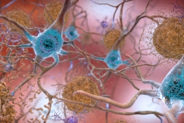 Growth hormones may be spreading Alzheimer's proteins