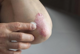 Depression in patients with psoriasis seldom screened for