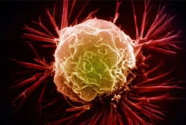 Wearable device captures cancer cells from blood
