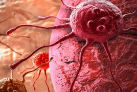 New experimental therapy tested in cancer patients for first time
