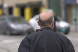 Scientists discover baldness solution