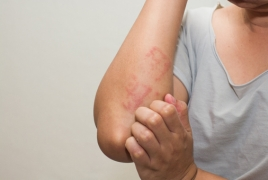 Heartburn drugs may contribute to allergies, says new study