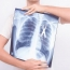 Lung cancer screenings can point to other smoking-related conditions