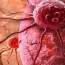 Breast cancer cells 'stick together' to spread through body: study