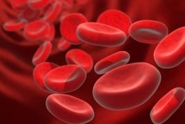 Male infertility linked to prostate cancer risk: study