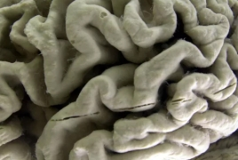 Endurance exercise may slow down Alzheimer's