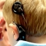 Правительство РА будет финансировать обслуживание слухового импланта и речевого процессора