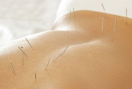 Acupuncture may help cancer patients control pain