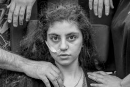 Армянка и кататонический синдром