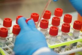 Karabakh reports four new coronavirus cases