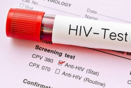 HIV patient may have been cured with experimental treatment