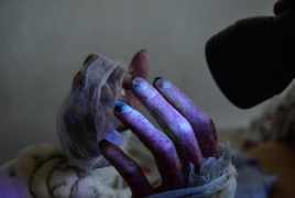 Evidence of Azerbaijan's use of chemical weapons in Karabakh unveiled
