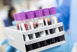 Armenia reports 143 new coronavirus cases, 535 recoveries