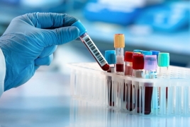 Armenia reports 223 new coronavirus cases, 101 recoveries