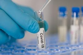 Armenia reports 1025 new coronavirus cases, 626 recoveries